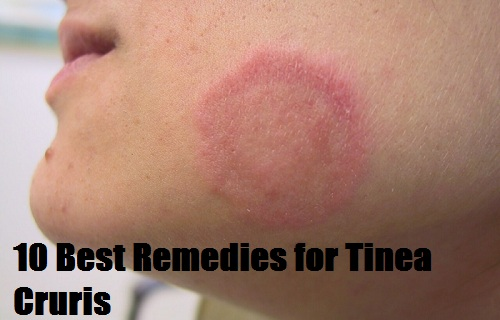 Remedies for Tinea Cruris